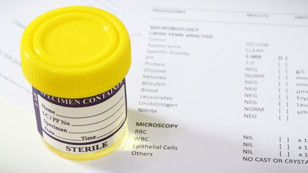Come si misura il glucosio nelle urine